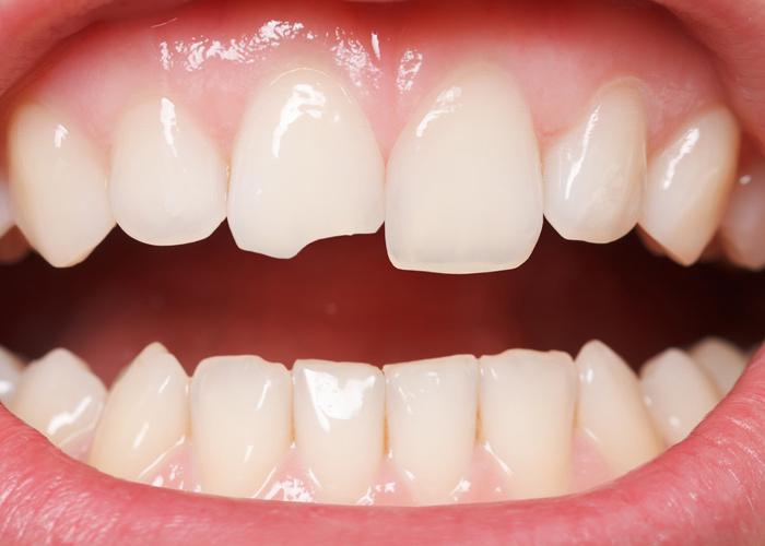 Craked tooth repair Newport beach