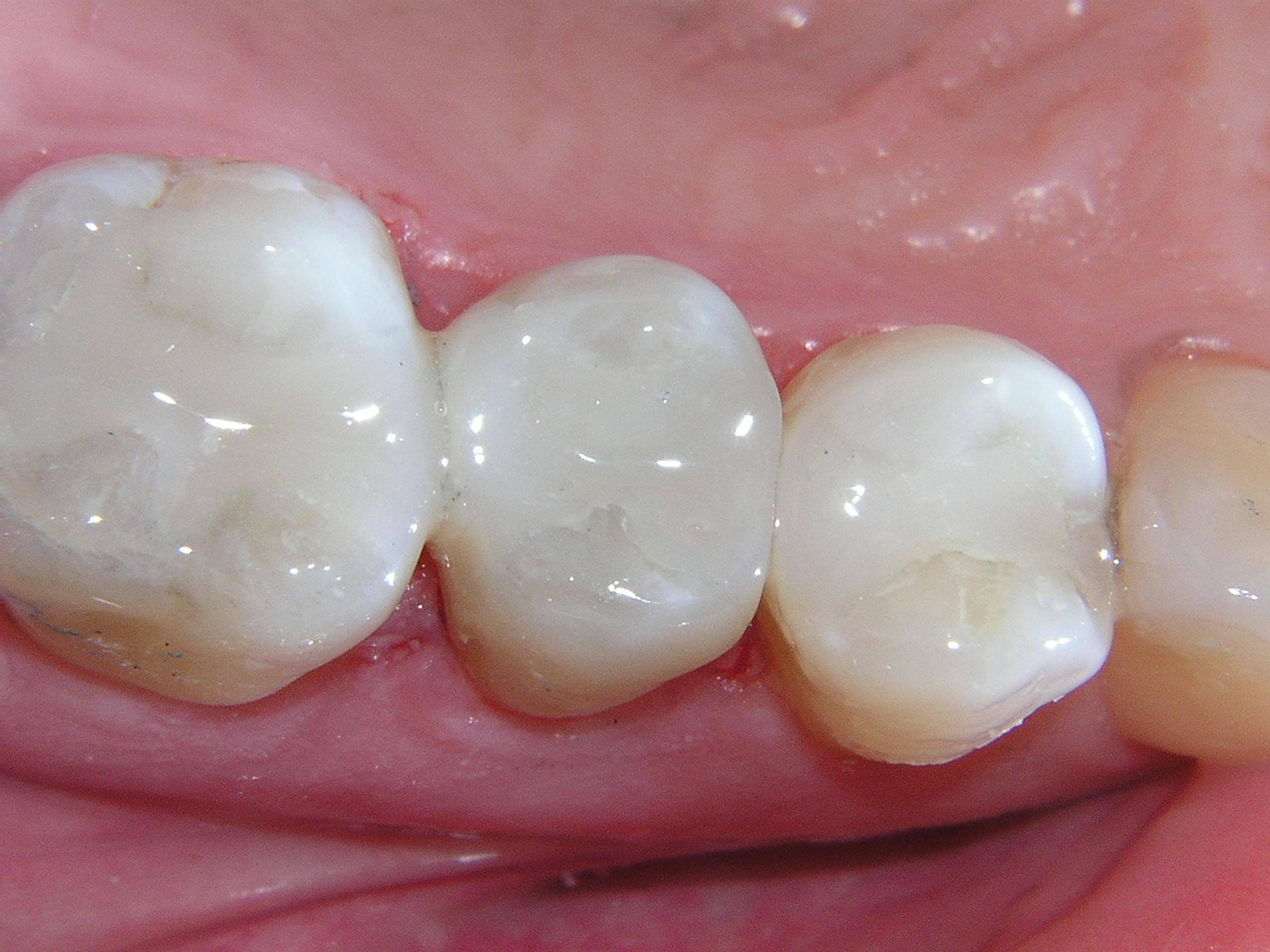 Dental fillings Newport Beach