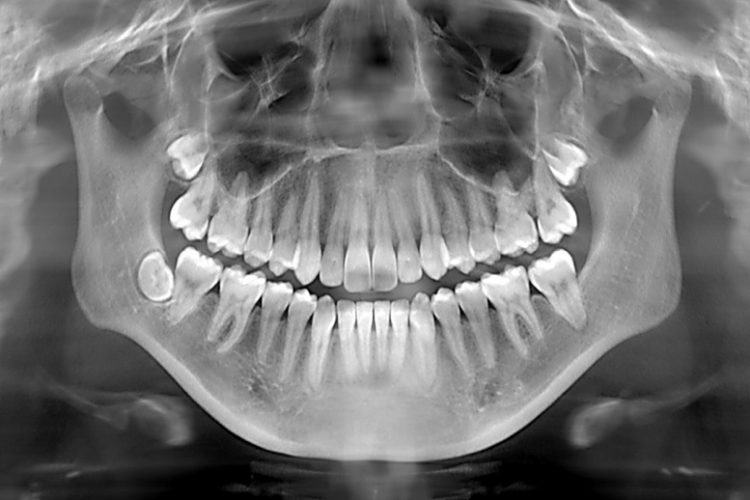 Dental X-Ray Newport Beach