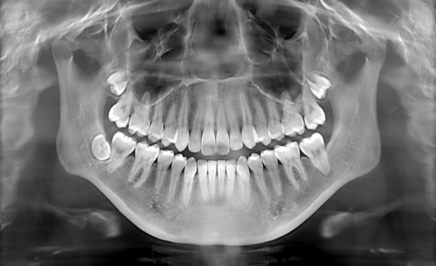 Dental X-Ray Newport Beach