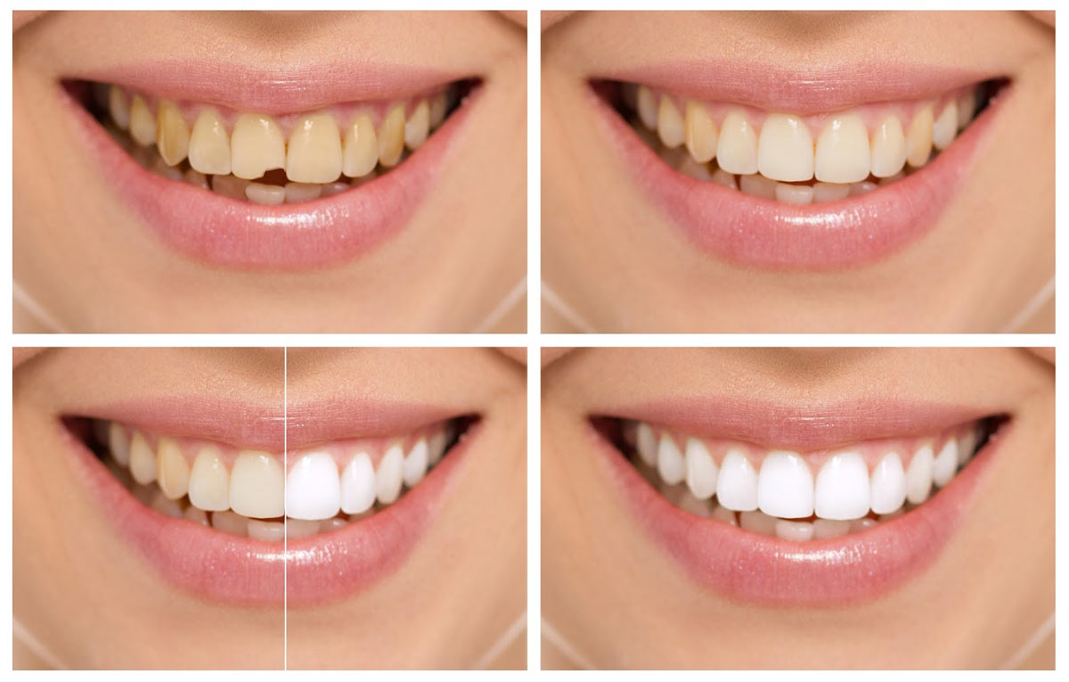 dental bonding Newport beach