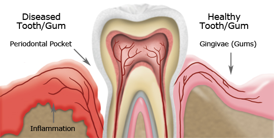 Gum disease treatment Newport beach