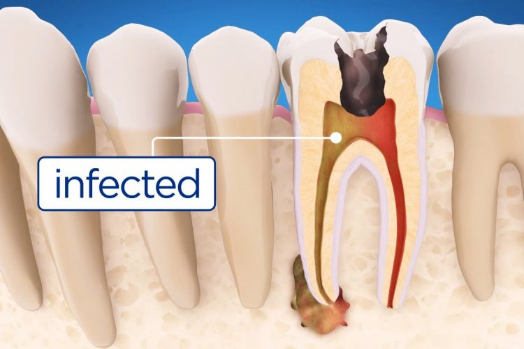 Root canal newport beach