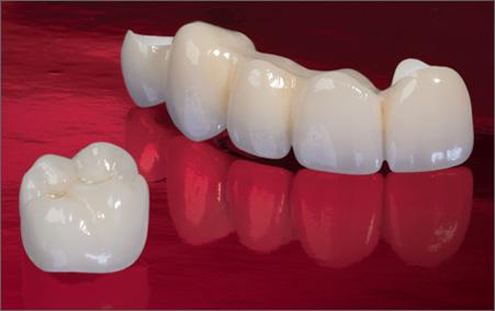 Dental crown Newport beach