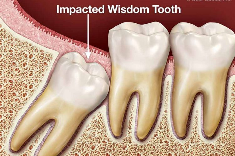 tooth extraction Newport beach ca