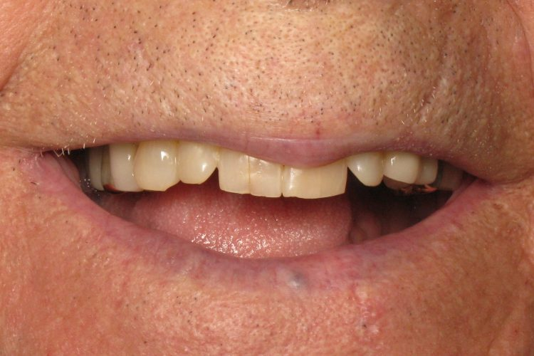 Alll on 4 dental implants before