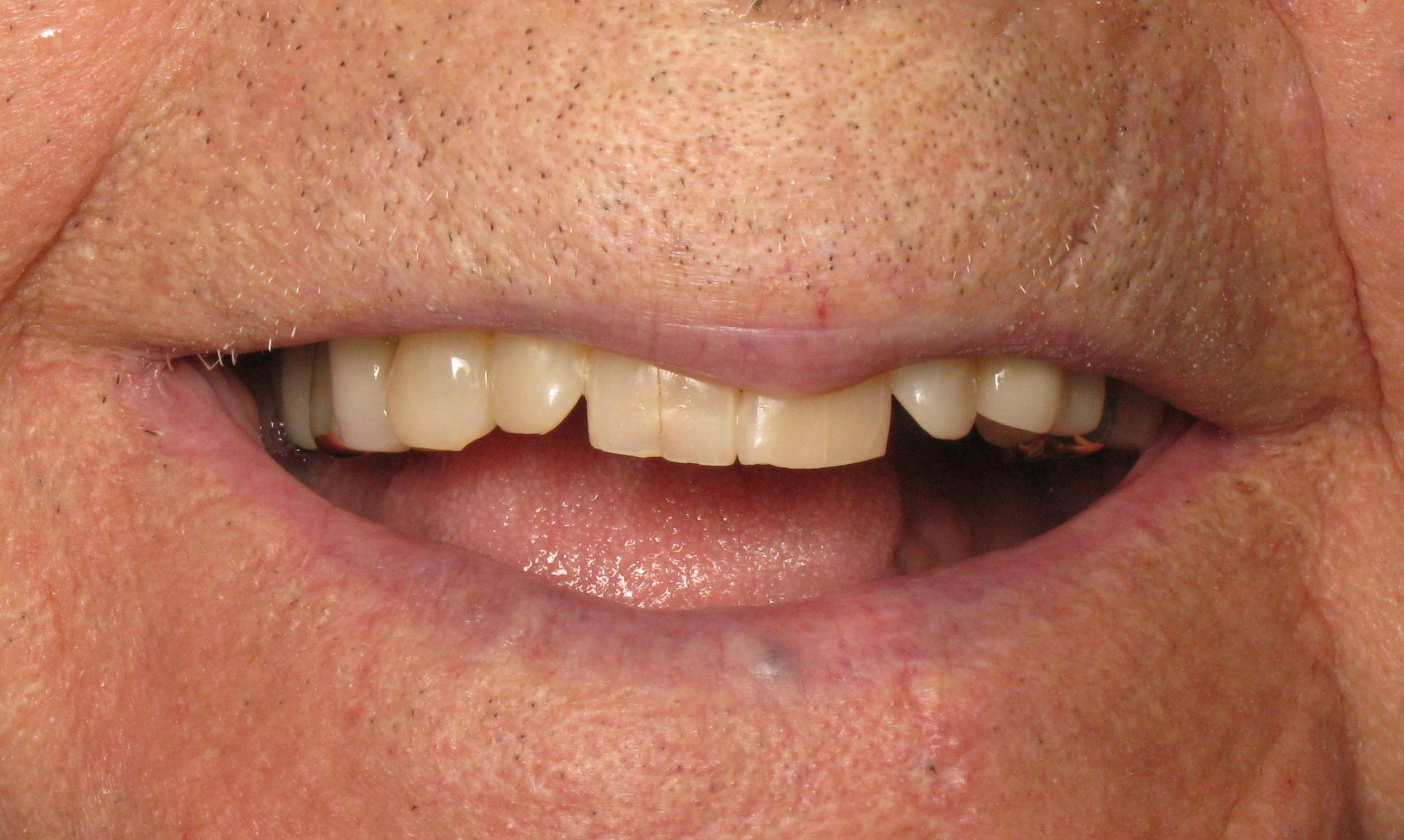 Alll on 4 dental implants before