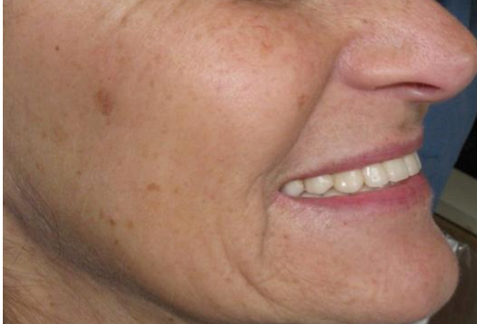 All on four dental full mouth Implant After