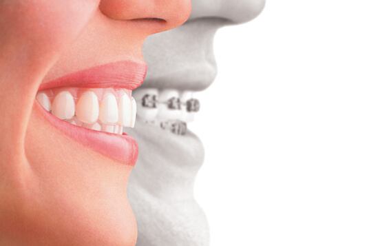 Orthodontics in newport beach