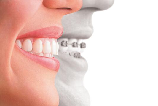Orthodontics in newport beach