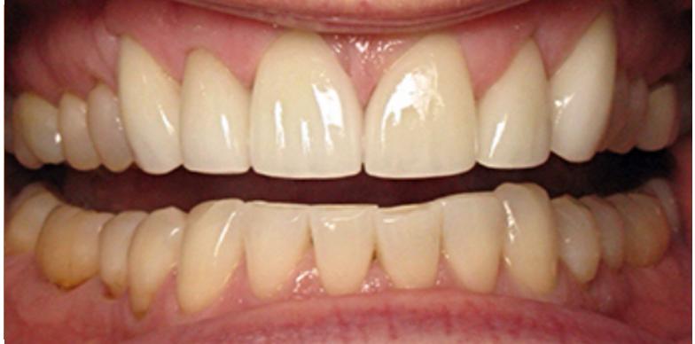 Six Front Teeth Veneers After