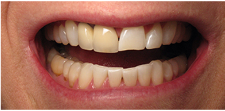 Six Front Teeth Veneers Before
