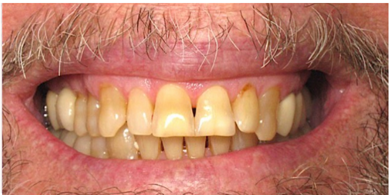 Upper front Dental Venners Before